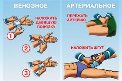 pigulevskaya i. hranu za hipertenziju