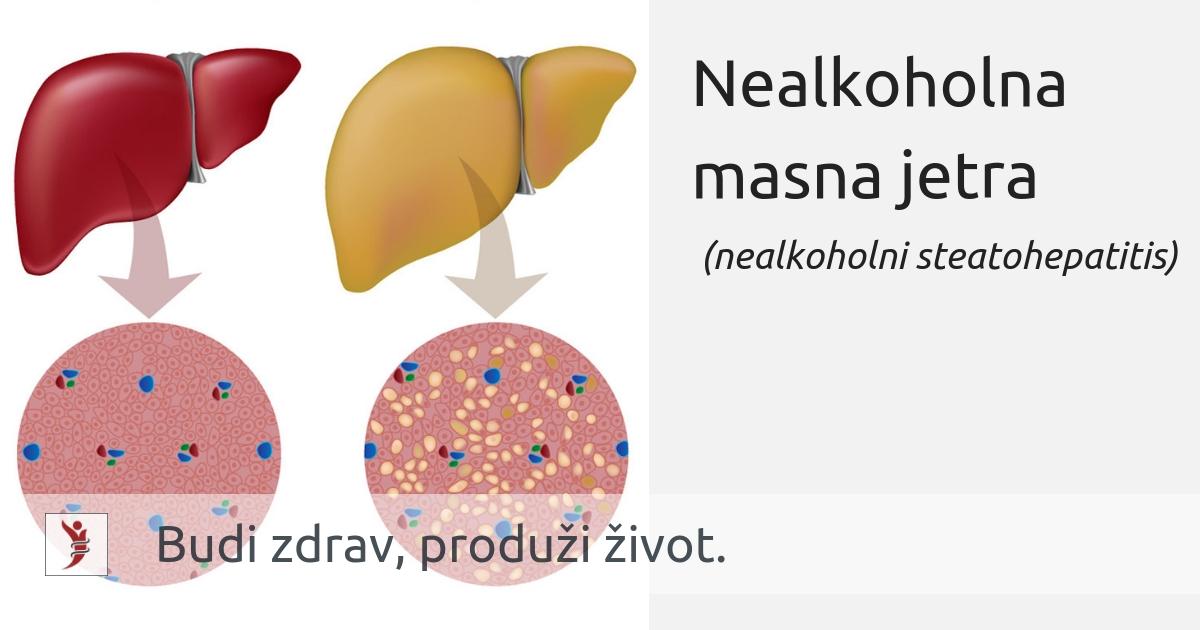 Proširene vene uzrokuju oštećenja jetre