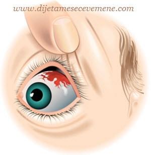 kapilare u oku hipertenzije