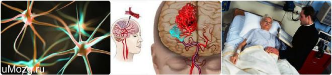oštećenje mozga u hipertenziji što za piće tablete s hipertenzijom