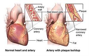 sveobuhvatan pregled hipertenzije organizma za prevenciju hipertenzije
