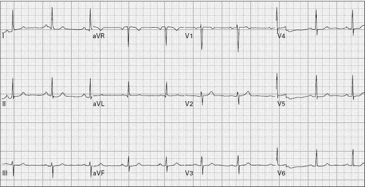 kobila hipertenzije onega hipertenzija instrumenta