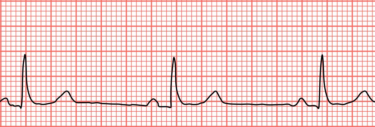 bradikardija sistolička hipertenzija umjerene hipertenzije