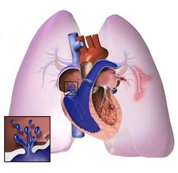 kongenitalna hipertenzija padobranstvo hipertenzije