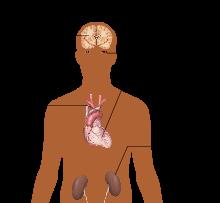 gdje hipertenzija glavobolja hipertenzija s poremećajima srčanog ritma