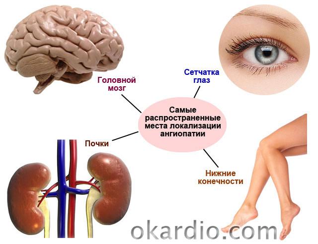 hipertenzija lijek samo disanje morske soli u hipertenzije