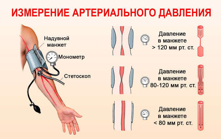 hipertenzija s vaskularnim distonija