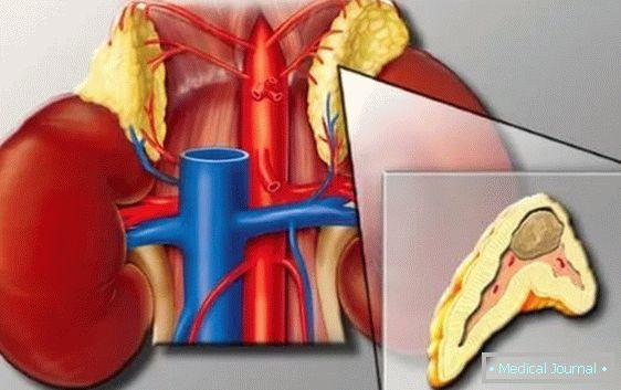 e hipertenzija lijek na način liječnici liječenje hipertenzije