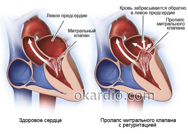 liječenje hipertenzije dijagram aktovegin ostatak u hipertenzije