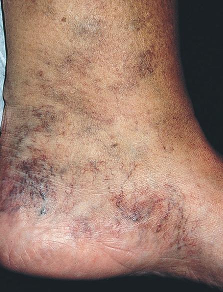 mrlje na nogama hipertenzije