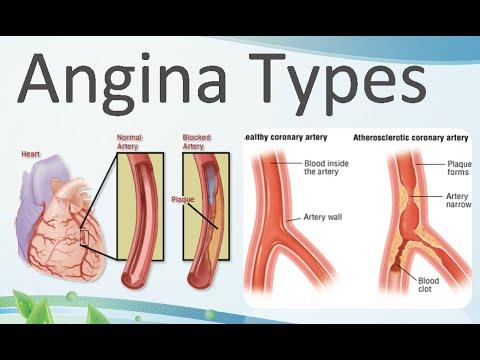 hipertenzija 2 1. stupanj