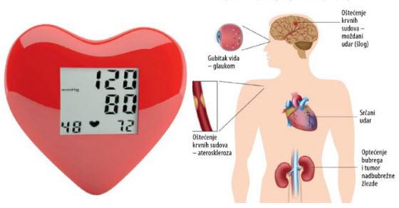 s hipertenzijom dijagnosticirana
